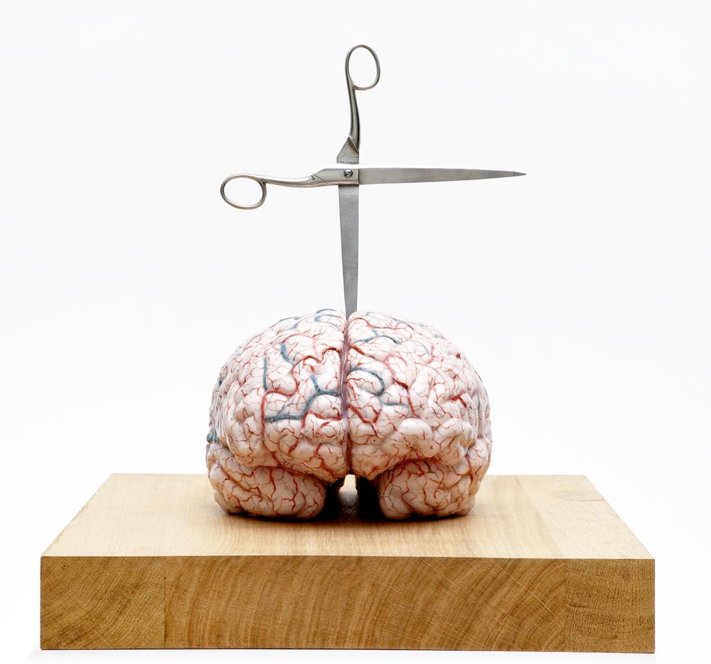 """Obra de Jan Fabre titulada """"Brain with star"""" de la Galería Studio Trisorio."""